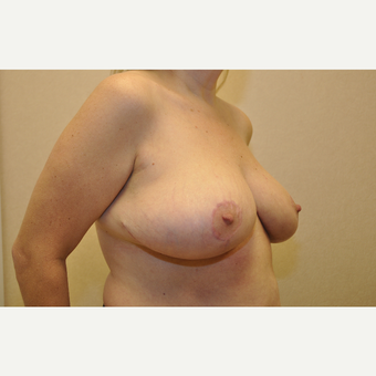 35-44 year old woman treated with Breast Reduction after 3103160
