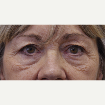 55-64 year old woman treated with Eyelid Surgery before 3184205