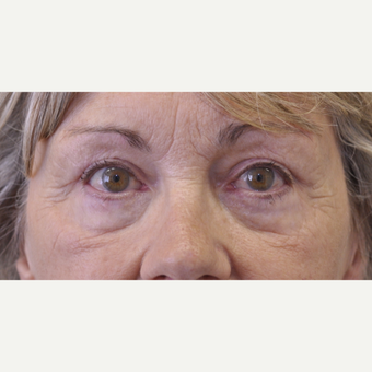 55-64 year old woman treated with Eyelid Surgery after 3184205