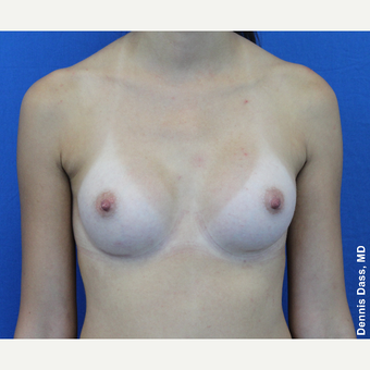 25-34 year old woman treated with Sientra Breast Implants after 3353145