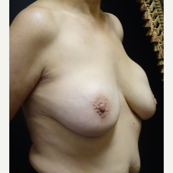 55-64 year old woman treated with Breast Lift with Implants before 3014457