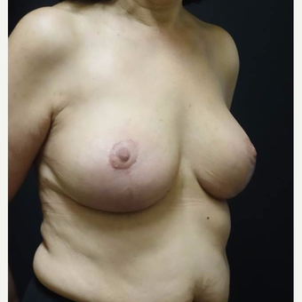55-64 year old woman treated with Breast Lift with Implants after 3014457