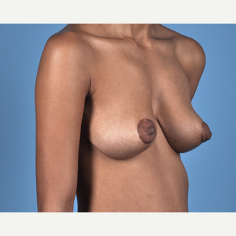 18-24 year old woman treated with Breast Lift after 3837693