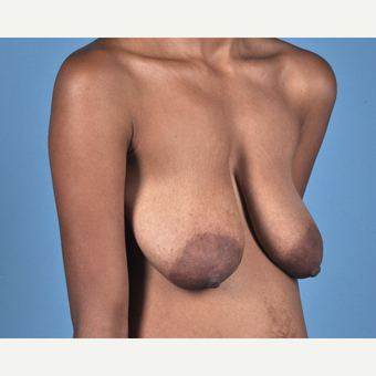 18-24 year old woman treated with Breast Lift before 3837693