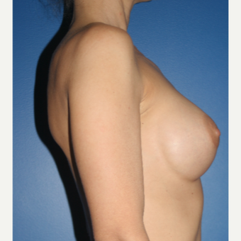 35-44 year old woman treated with Breast Implant Revision:  Saline to Silicone before 3788662