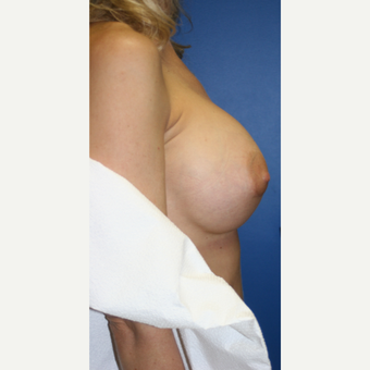 35-44 year old woman treated with Breast Implant Revision:  Saline to Silicone after 3788662