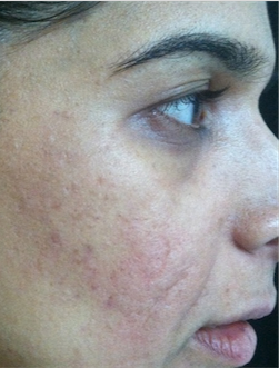 35-44 year old woman treated with Acne Scars Treatment before 1680593