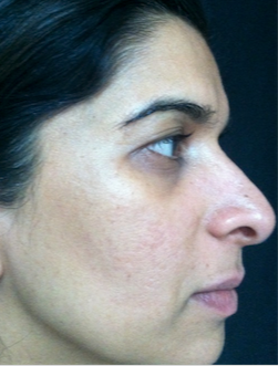 35-44 year old woman treated with Acne Scars Treatment after 1680593