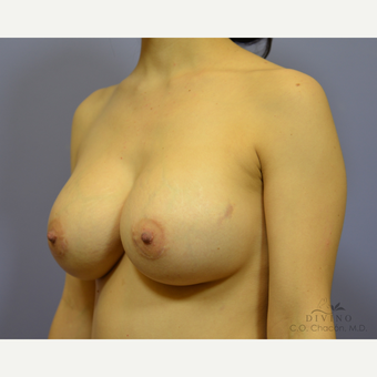 25-34 year old woman treated with Breast Augmentation after 3418990