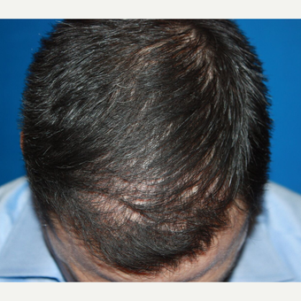 35-44 year old man treated with Hair Transplant after 3725085