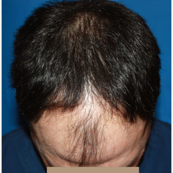 35-44 year old man treated with Hair Transplant before 3725085