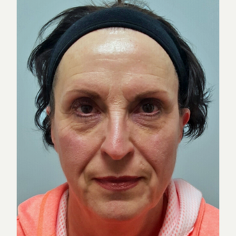 Facial Rejuvenation on 66 year old patient before 2999300