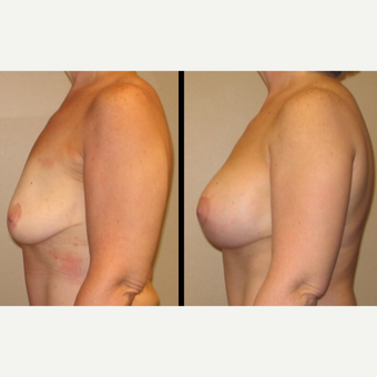 45-54 year old woman treated with Breast Lift with Implants after 2780729