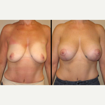 45-54 year old woman treated with Breast Lift with Implants before 2780729