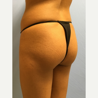 25-34 year old woman treated with Smart Lipo before 3437288
