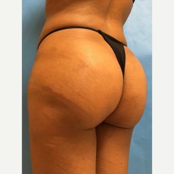 25-34 year old woman treated with Smart Lipo after 3437288