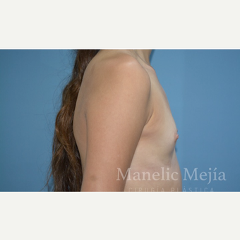 18-24 year old woman treated with Breast Augmentation before 3647427