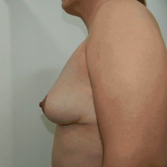 25-34 year old woman treated with Breast Lift after 3370463