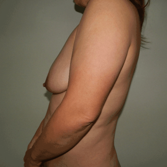 25-34 year old woman treated with Breast Lift before 3370463