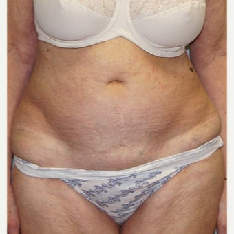 75 and up year old woman treated with Tummy Tuck before 2526755