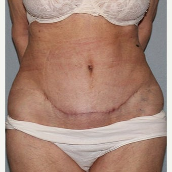 75 and up year old woman treated with Tummy Tuck after 2526755