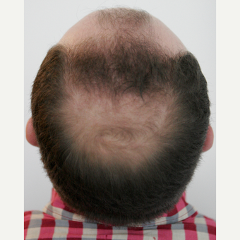 25-34 year old man treated with FUE Hair Transplant before 3258323