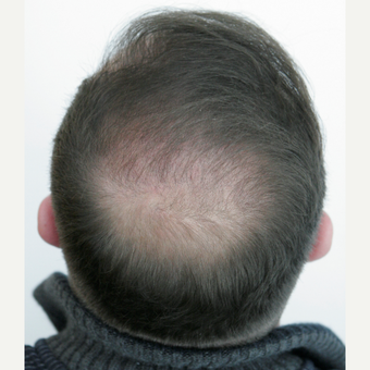 25-34 year old man treated with FUE Hair Transplant after 3258323