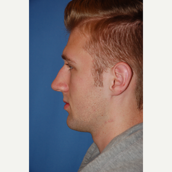 18-24 year old man treated with Rhinoplasty before 3781892