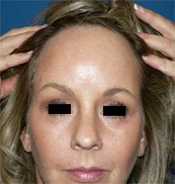 Endoscopic Browlift after 384694