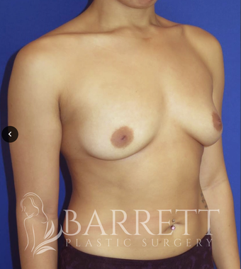 18-24 year old woman treated with Breast Augmentation 3611964