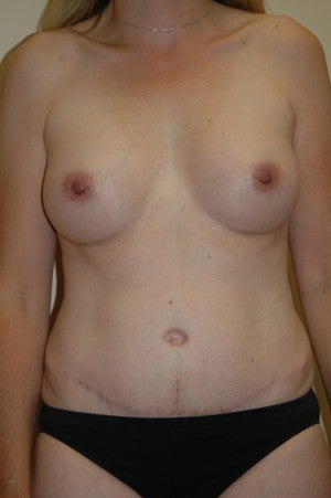 Abdominoplasty with simultaneous 275 cc breast augmentation.