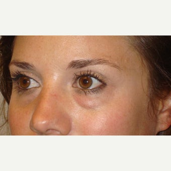 32  year old woman treated for Eye bags (Lower blepharoplasty with fat repositioning)