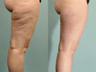 40 year old Cellulaze anterior and posterior thighs - 10 days post op before 1024159
