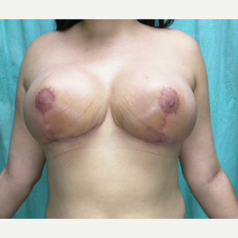 25-34 year old woman treated with Breast Reduction after 3260239