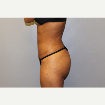 25-34 year old woman treated with Brazilian Butt Lift after 3565714