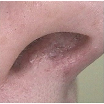 35-44 year old woman treated with Pulsed Dye Laser after 2119800