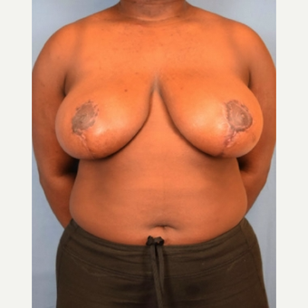 18-24 year old woman treated with Breast Reduction after 3630501
