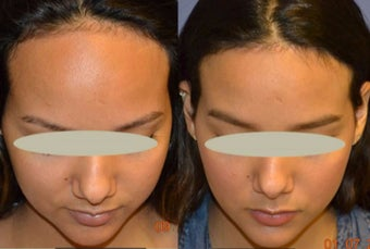 18-24 year old woman treated with Forehead Reduction after 2638409