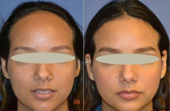 18-24 year old woman treated with Forehead Reduction before 2638409