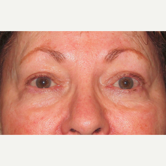 Eyelid Surgery (Blepharoplasty) after 3831659
