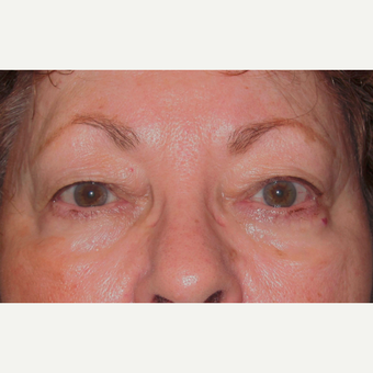 Eyelid Surgery (Blepharoplasty) before 3831659