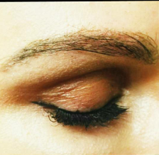 25-34 year old woman treated with Eyebrow Transplant after 3420857