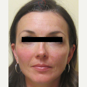 35-44 year old woman treated with Voluma in cheeks after 3222810