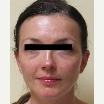 35-44 year old woman treated with Voluma in cheeks before 3222810