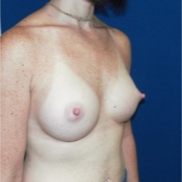 35-44 year old woman treated with Breast Implants after 3131741
