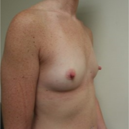 35-44 year old woman treated with Breast Implants before 3131741