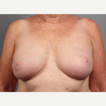 65-74 year old woman treated with Breast Reconstruction Revision after 3371044