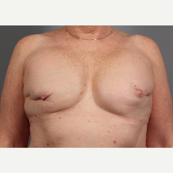 65-74 year old woman treated with Breast Reconstruction Revision before 3371044
