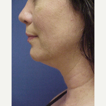 45-54 year old woman treated with Kybella before 3604714