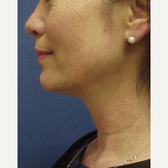 45-54 year old woman treated with Kybella after 3604714